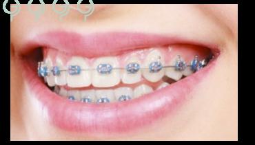¿Qué no puedo comer con ortodoncia?