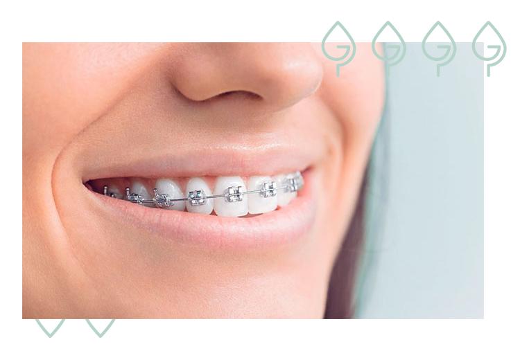 ortodoncia brackets metálicos