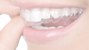 Consejos para mantener tu ortodoncia perfecta