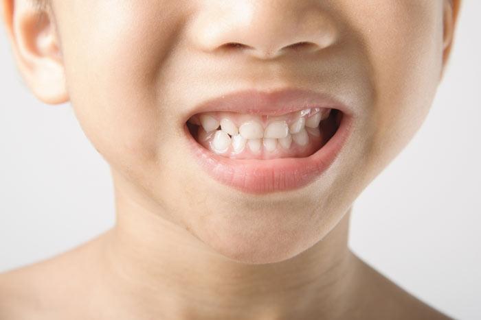 hijo-rechinar-dientes