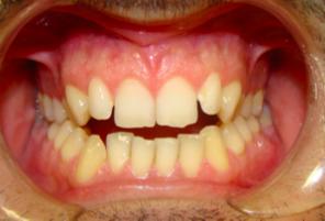ortodoncia Gijón