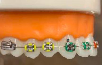 brackets convencionales clínica dental Gijón