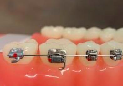 brackets autoligables de ortodoncia en Gijon
