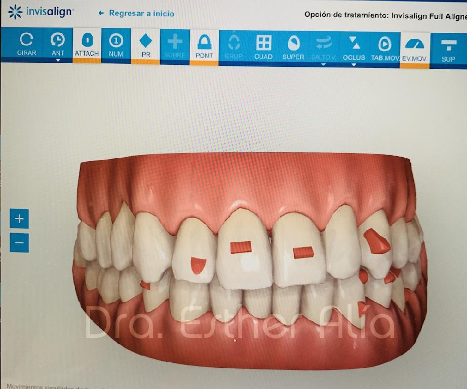 arreglar boca sin brackets