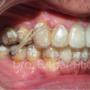 ¿Me puedo arreglar la boca sin brackets?
