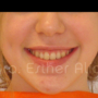 Corrección Dental
