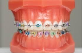 brackets ortodoncia niños Viesques