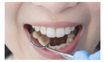 Blanqueamiento dental: Antes y después