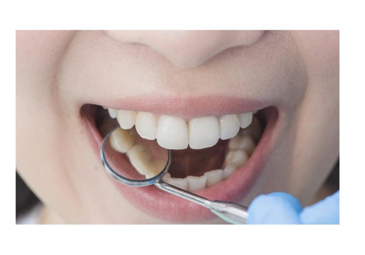 ¿Qué son las enfermedades periodontales o de encías?