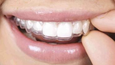 Ortodoncia invisible: qué es y tipos de dudas más frecuentes