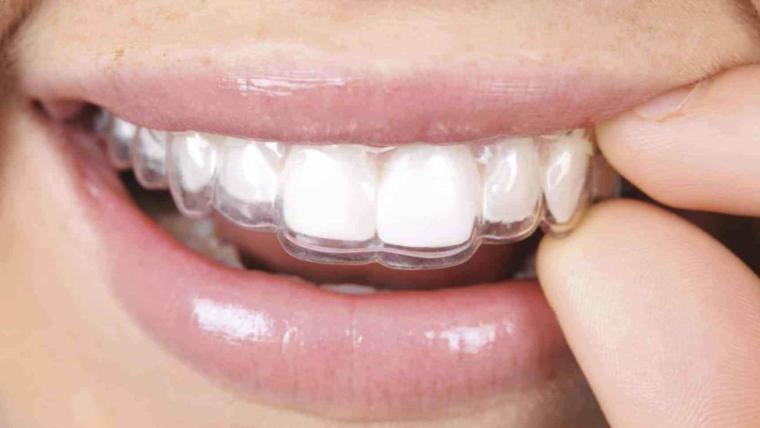 Retenedores dentales, ¿qué son?