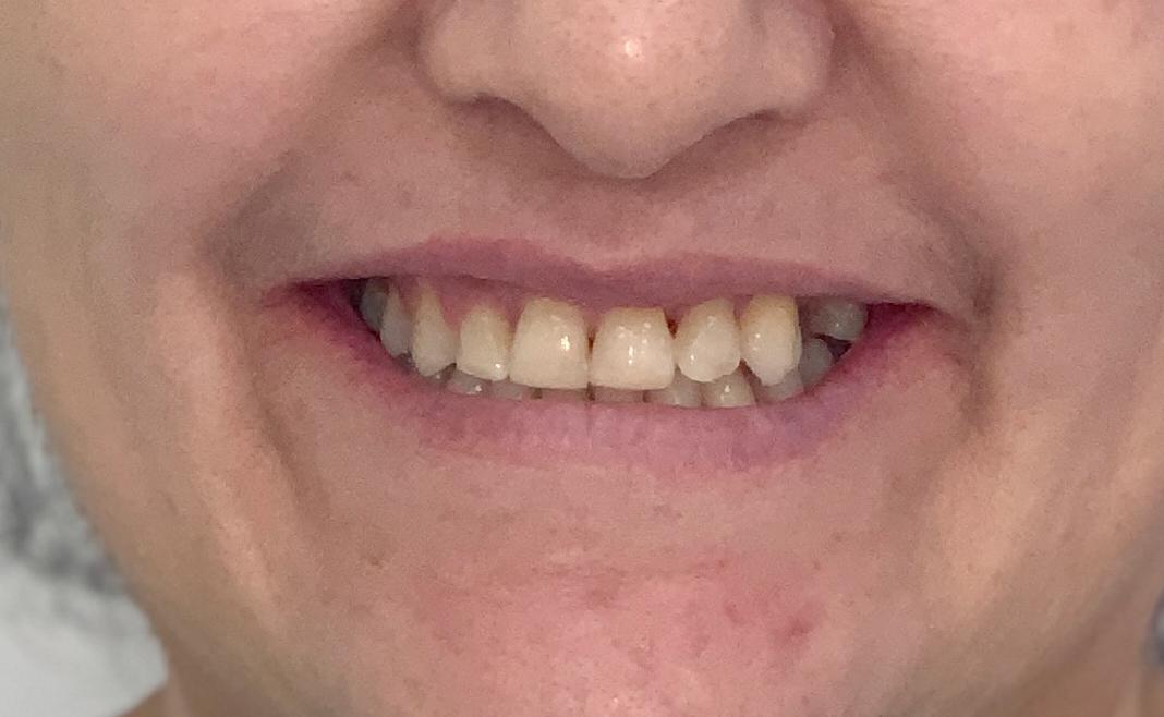 Patricia, prognatismo mandibular