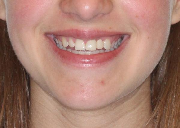 Cristina, Ortodoncia + Rehabilitación estética anterior