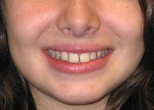 Celia, Respiradora oral, logopedia + ortopedia dentofacial