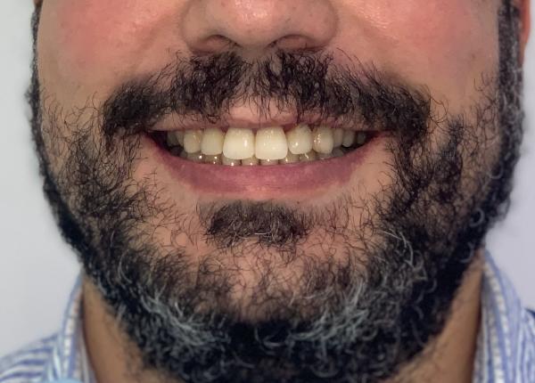 Pedro, protrusión labial. Invisalign