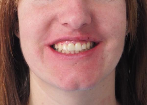 Silvia, Ortodoncia (Brackets Damon) + Implante anterior