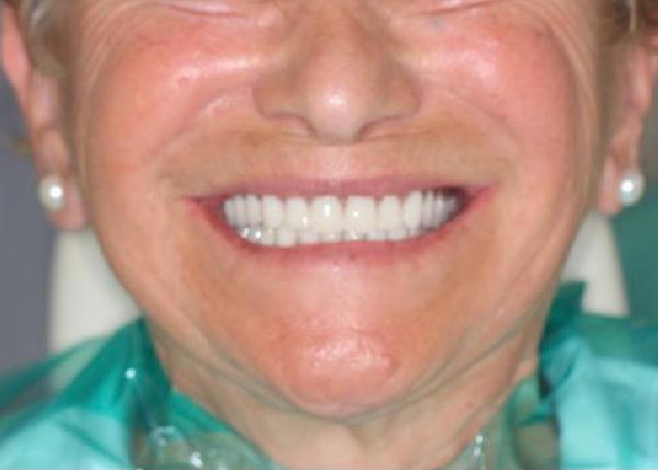 Carmen, rehabilitación oral mediante sobredentadura