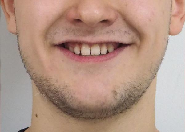 Marcos, prognatismo mandibular. Carillas y brackets convencionales