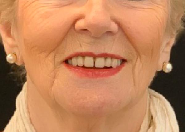 Marisol, rehabilitación oral mediante prótesis híbrida